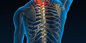 Remedios para la tensión y dolor muscular